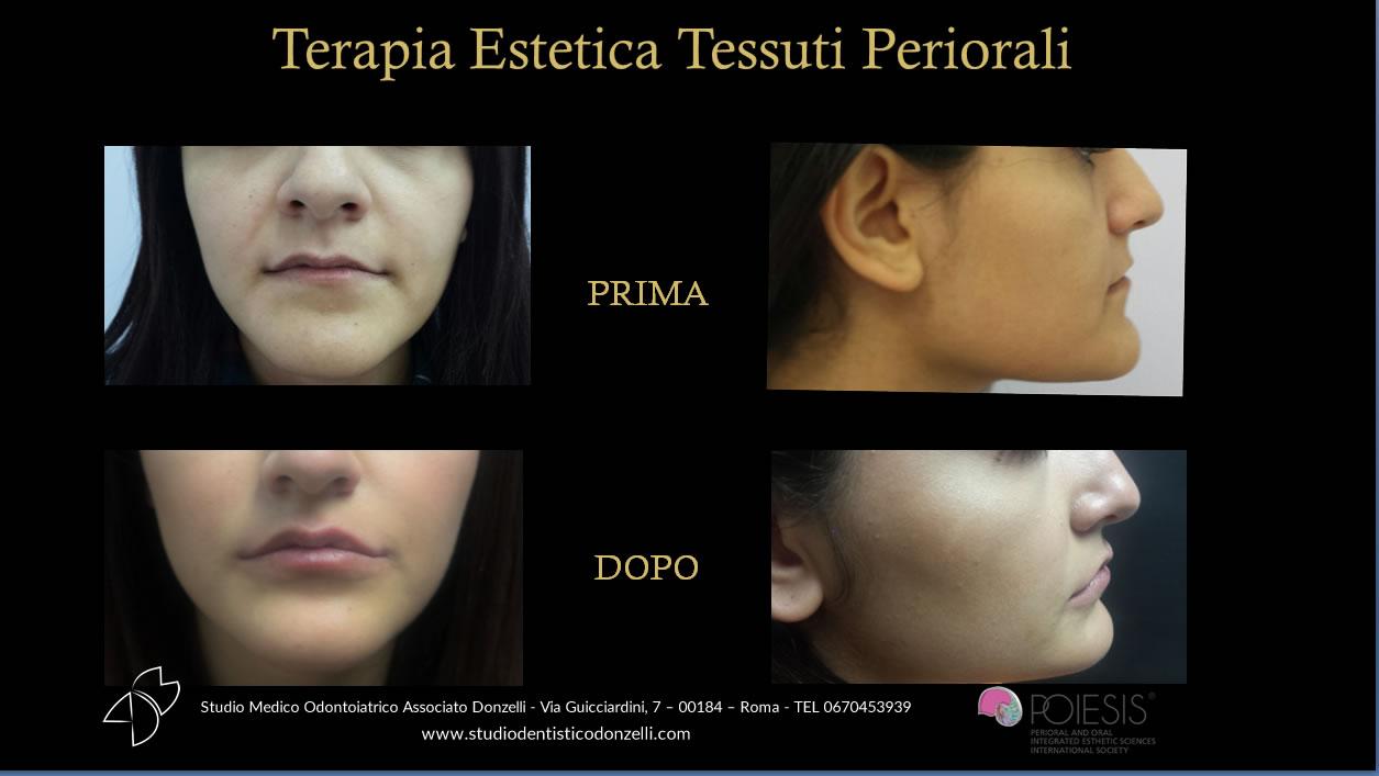 Terapia estetica tessuti periorali - Studio Medico Odontoiatrico Donzelli