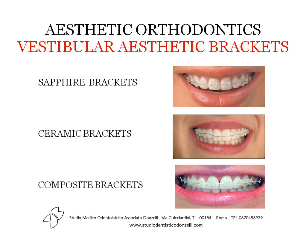 Aesthetic Orthodontics Vestibular Aesthetic Brackets - Studio Medico Odontoiatrico Donzelli