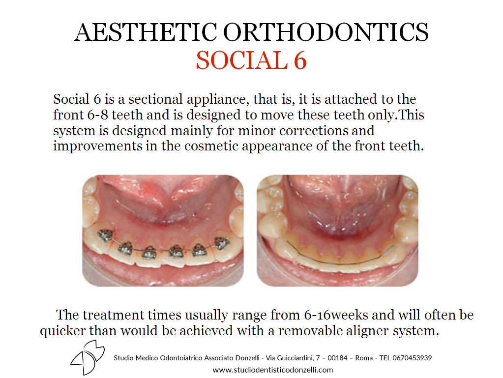 Aesthetic Orthodontics Social 6 - Studio Medico Odontoiatrico Donzelli