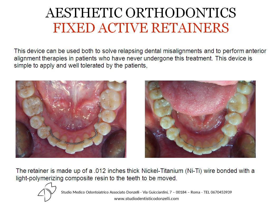 Aesthetic Orthodontics Fixed Active Retainers - Studio Medico Odontoiatrico Donzelli