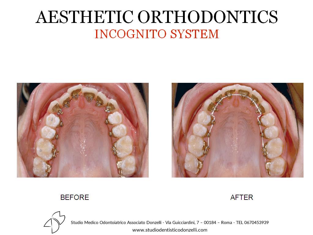 Aesthetic Orthodontics Incognito System - Studio Medico Odontoiatrico Donzelli