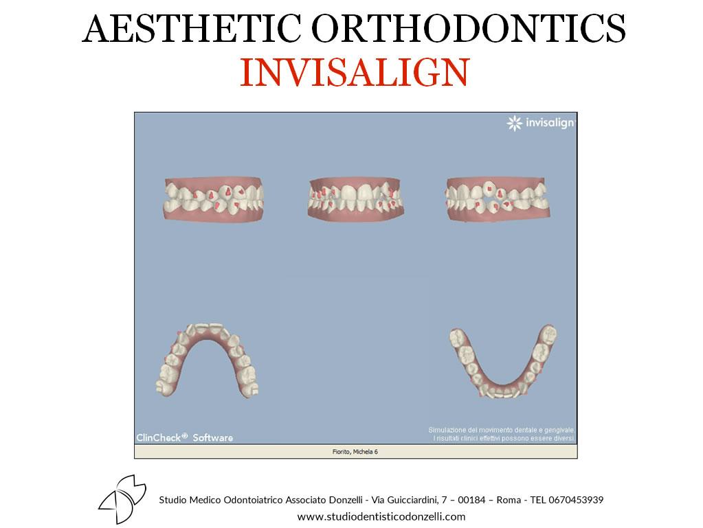 Aesthetic Orthodontics Invisalign - Studio Medico Odontoiatrico Donzelli