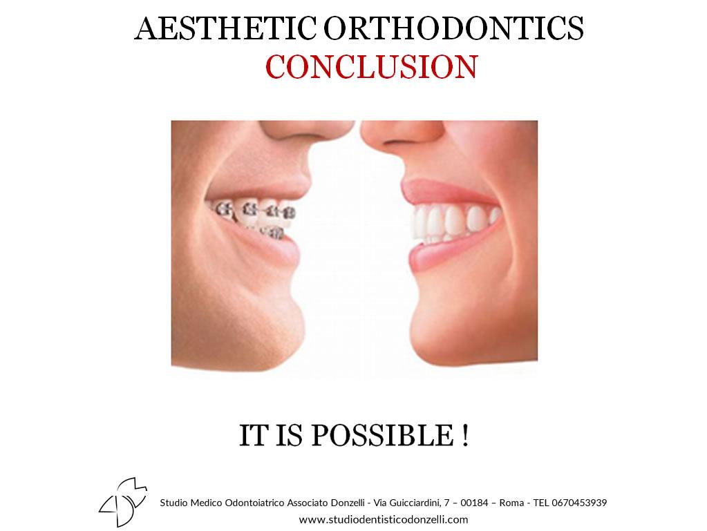Aestethic Othodontics Conclusion - Studio Medico Odontoiatrico Donzelli